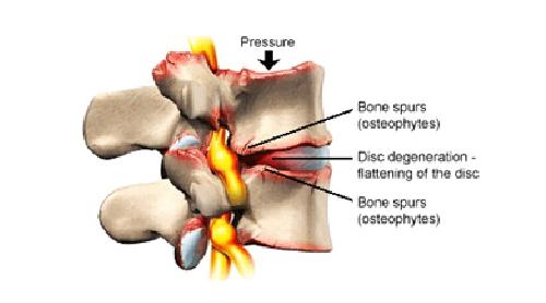kreuzschmerzen-lws-syndrom