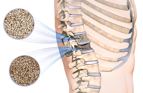 Osteoporose-im-Rueckenwirbel